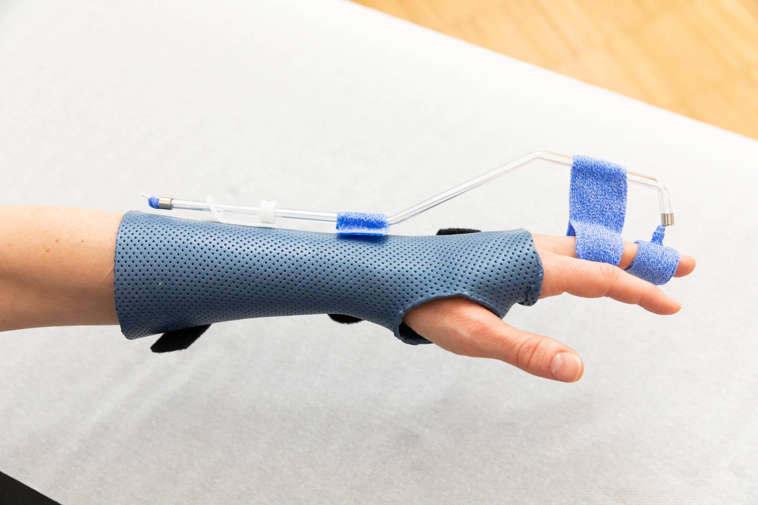 Handchirurgie München Schiene dynamisch